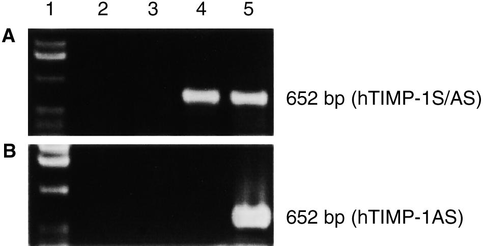 Expression of exogenous human TIMP-1 sense and antisense RNA detected by RT-PCR.