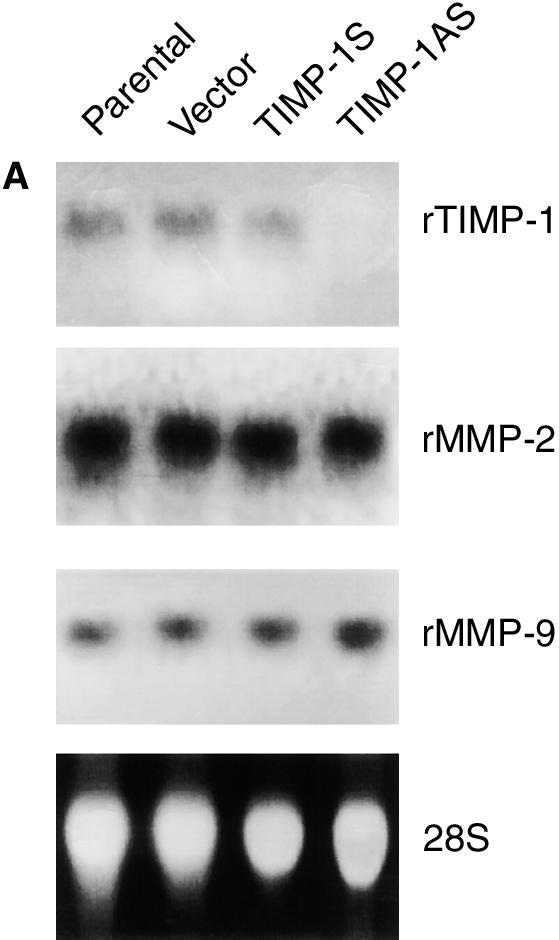 Numbers at the left correspond to relative molecular weight of protein in kilodalton. Cells transfected with sense TIMP-1 expressed the TIMP-1 protein.
