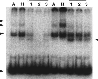 1554 In human cell lines, Ku represents the major doublestrand DNA end binding protein as detected by band shift experiments and its expression does not appear to be regulated within cell types