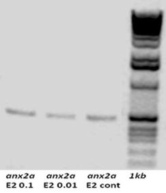 Separation of total RNA on denaturing gel electrophoresis followed by gel red staining. The quantification results of extracted RNA is shown in table 2 where E2 0.01 and E2 0.