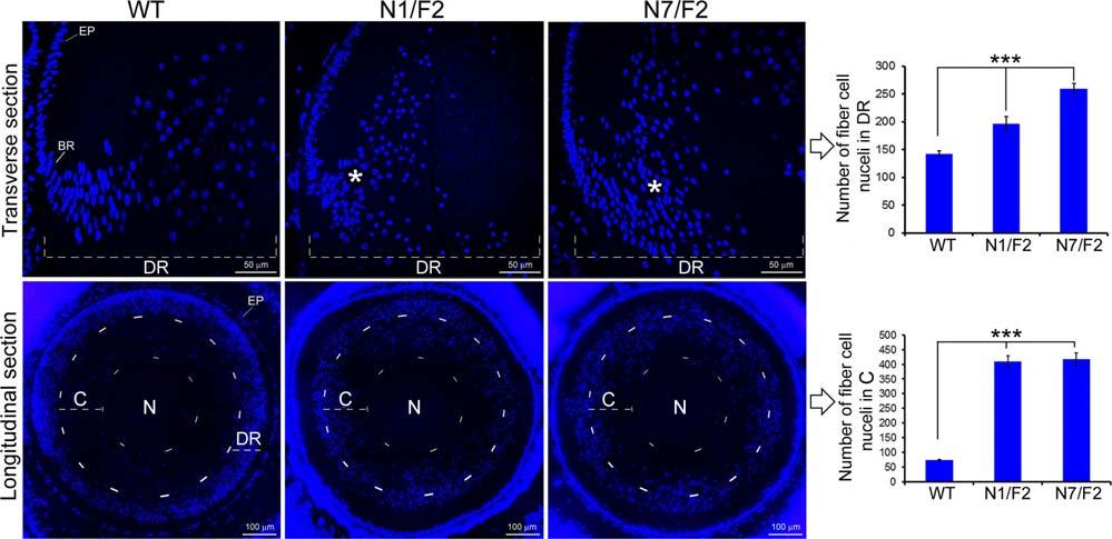 A Mouse Paradigm for Childhood Lamellar Cataract IOVS j November 2014 j Vol. 55 j No. 11 j 7237 FIGURE 9. Accumulation of differentiating fiber cell nuclei in the PND02 transgenic lenses.