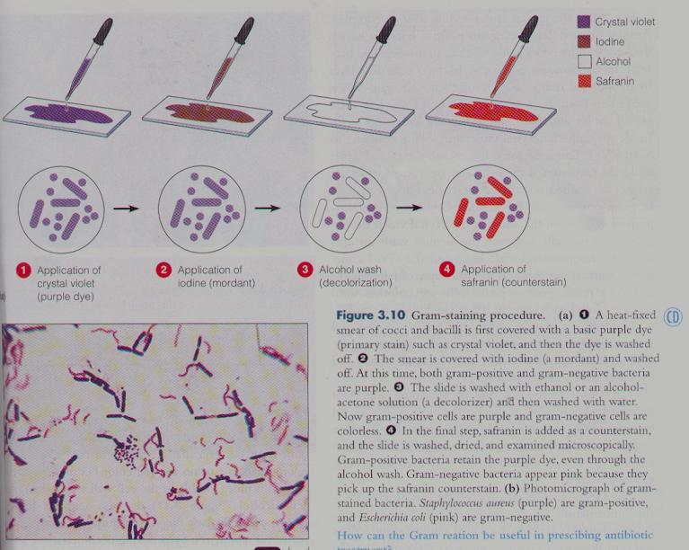 Gram Stain Based on cell wall composition and