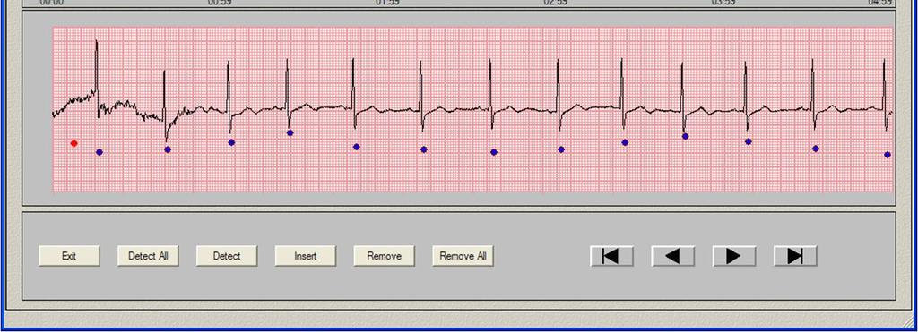 record. The bottom graph shows a recorded signal (ECG or pulse wave).