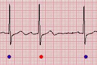When you find an abnormal heartbeat not detected by the program automatically as shown above, you may fix it manually taking the following