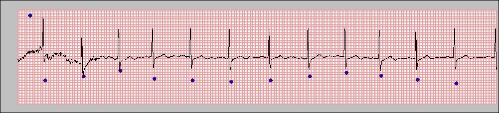 When you find a heartbeat detected by the program, which does not seem to