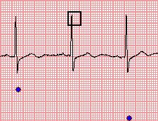 When you find a normal heartbeat not detected by the program, you may fix it manually taking the following steps: 1.