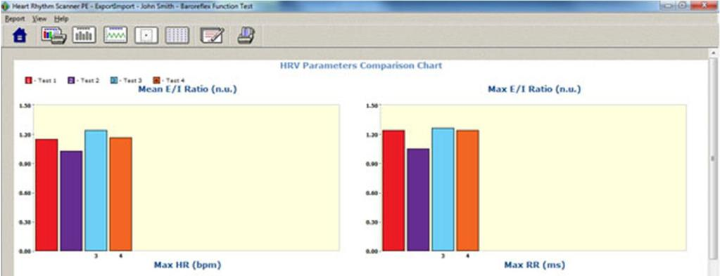 7.6.3. Heart Rate Graph Report This view shows a line graph of heart rate (cardiac tachogram) recorded in this test.