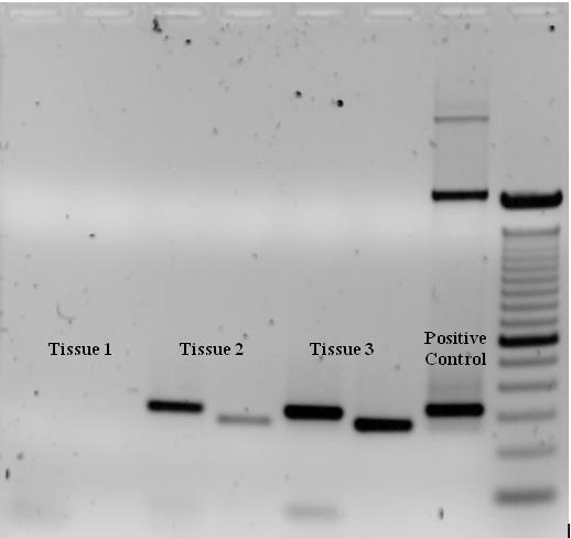 Gel Electrophoresis to Verify Amplification PCR very powerful, amplifies tiny amounts of contaminating DNA.