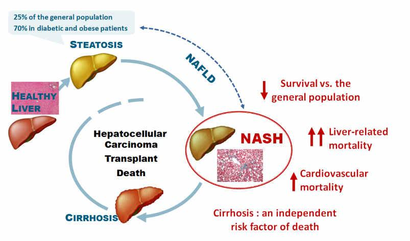 Pathophysiology of NASH Inflammation plays a key role in the pathogenesis of NASH as conditions like obesity are all associated with an elevated state of chronic inflammation that cause damage to