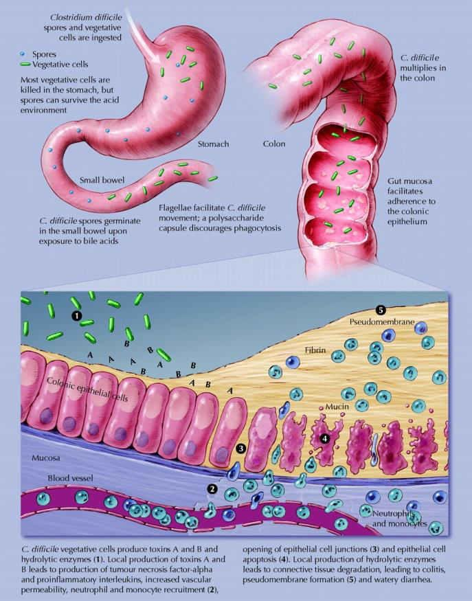 Pathophysiology of CDI Clostridium difficile (CD) is a spore-forming microorganism that releases toxins when in an anaerobic environment.