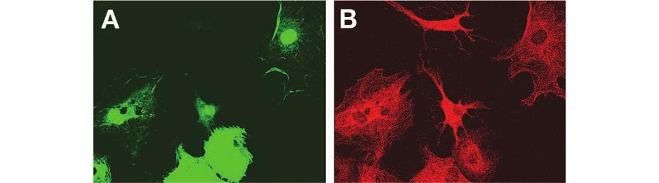 The hmsc culture after infection with Ad-PGK-EGFP was treated with osteogenic medium for 14 days. (A): Transduced cells encoding GFP. (B):Alkaline phosphatase staining cells.