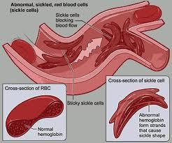 cystic fibrosis, sickle cell anemia, Tay-Sachs