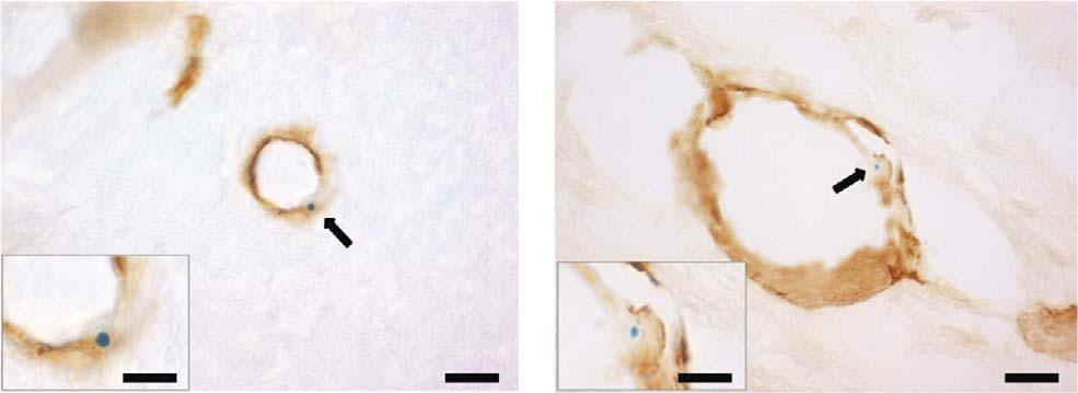 black diamond, naive þ avcam-af488-mmpi). Data are shown as specific contrast (left right difference) for each animal; note negligible specific contrast is apparent in the control mice.