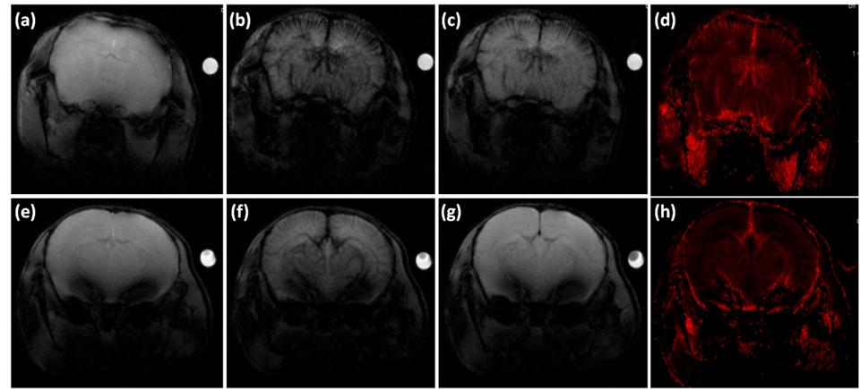 194 Chapter 5 Biodistribution studies To evaluate the performance of the bioferrofluid as a contrast agent compared to Endorem in steady-state condition, T 2 *-weighted images in brain were acquired