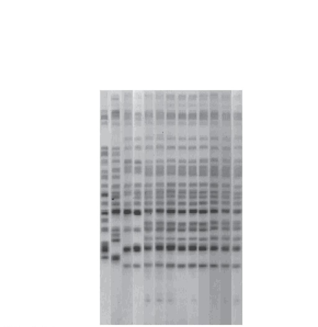 Figure 9.17 DNA fingerprints used to track an infectious disease. E.