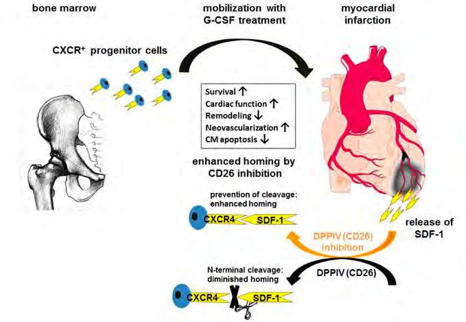 Internal Medicine III Fig. 1: Targeting of CXCR4+ cells with DPP-IV/CD26 inhibition plus G-CSF treatment.