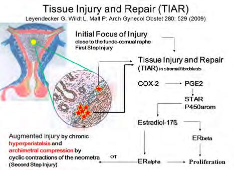 2: TIAR-Tissue injury and Repair Archived Gynecolgy and Obstertics novel prostaglandin antagonists on pain in patients suffering from endometriosis.