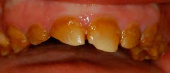 Dental Prosthodontics and Restorative Dentistry tially smoother surface than glazed ceramic.