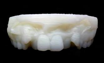 Research 3-D Low Budget Printer The aim of the study was to evaluate the benefits and drawbacks of 3D dental mo - d el printing compared to standard dental plaster casts.