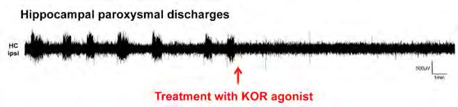 Pharmacology Fig. 2: EEG depth electrode recording from the ipsilateral hippocampus of an epileptic mouse before and after KOR agonist treatment.