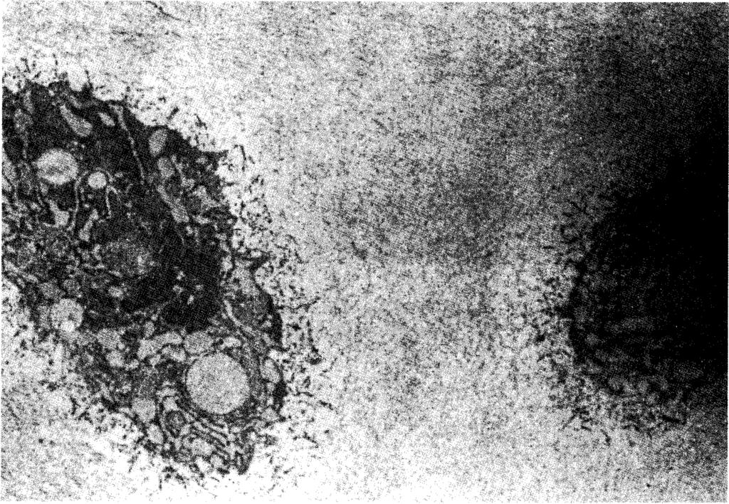 and Golgi complex. TEM ; X - 8000 Fig. 5.