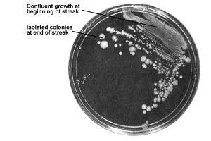 The goal: isolated colonies for further purification C.