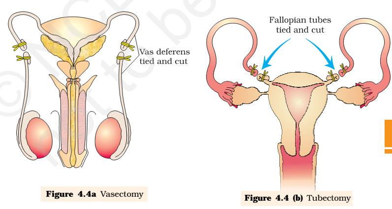 causes bizarre and irregular growth of the endometrium. Prevents implantation of a fertilized ovum.