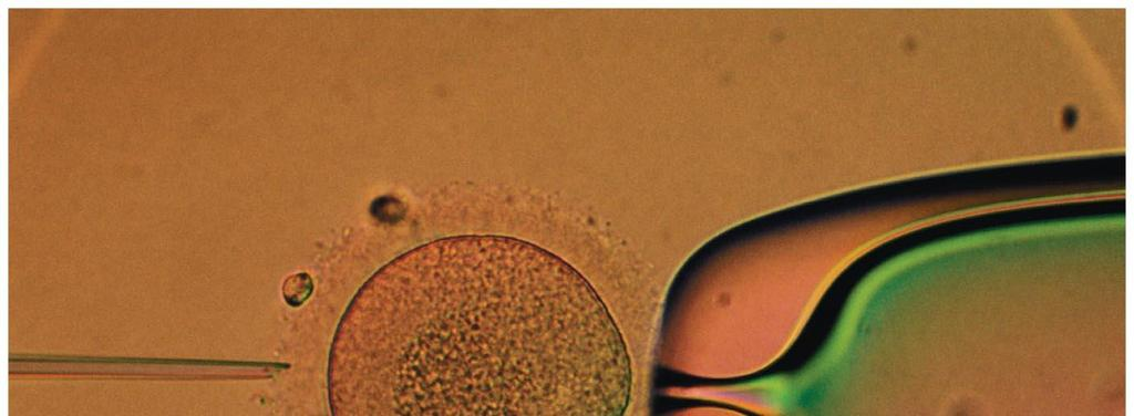 Figure 9.7 The microinjection of foreign DNA into an egg. Figure 9.