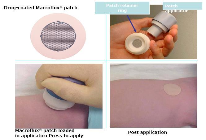 Transdermal Microneedles Patch Application is
