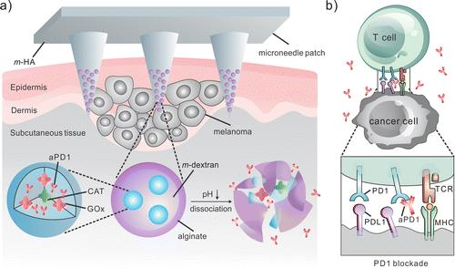 Recent Development of Microneedles Schematic of the MN patch-assisted delivery of apd1 for the skin cancer treatment.