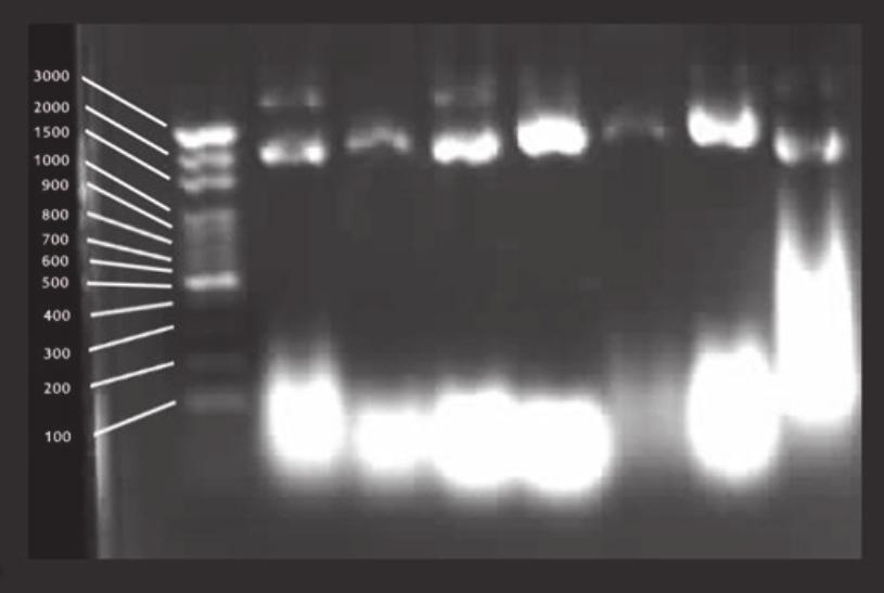 International Journal of Genomics (a) (b) Figure : (a) Prenatal cdna clones obtaining with alkaline lysis method. (b) Cutting of prenatal cdna clones with Bsp47I restriction enzyme.