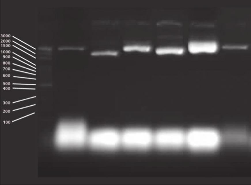 International Journal of Genomics 3 (a) (b) Figure : (a) Postnatal cdna clones obtaining with alkaline lysis method. (b) Cutting of postnatal cdna clones with Bsp47I restriction enzyme.