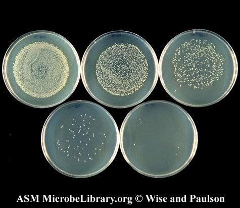5. Place them in the empty petri dishes and let them cool 6. Start with the lowest dilution (the one with the least bacteria) 7. Put an open plate on the turntable 8.