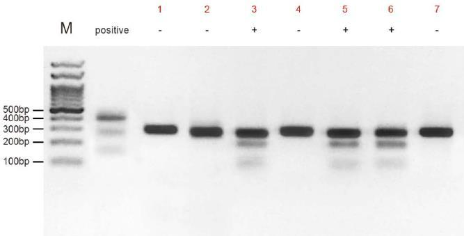 Digest Hybrid DNA and Gel Analysis Annealed PCR products 2-5 μl 5 Detection buffer 2 μl Detection enzyme 1 μl Add ddh 2 O to 10 μl Incubate at 45 C for 15-20 min (no longer that 30 min), and then add