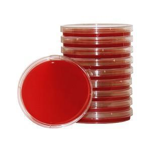 This is blood media. It is considered an enrichment media. It is the most common media used in microbiology.