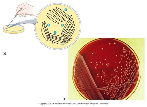 Once a urine sample is to be tested, it is grown on CLED and blood agar.