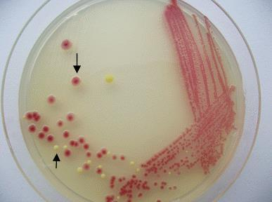 There are 2 types of bacteria here, each represented in a different color. Note: Sometimes, in a urine sample more than 5 types of bacteria appear as colonies.