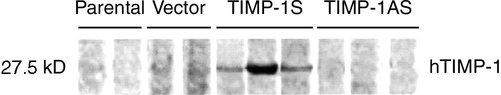 64 Lin et al: Apoptosis inhibition by TIMP-1 Fig. 4. Expression of TIMP-1 protein detected by Western blotting.
