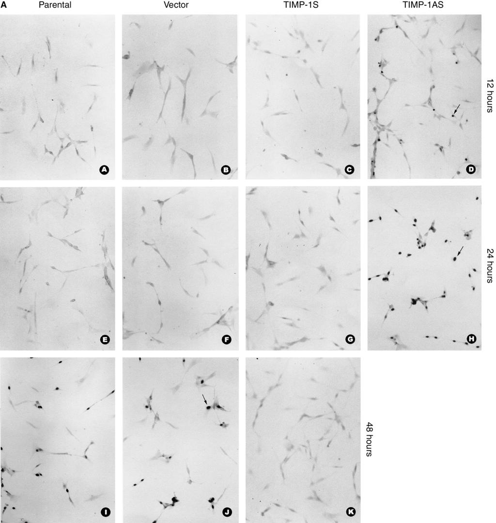 66 Lin et al: Apoptosis inhibition by TIMP-1 Fig. 6. (A) Effects of sense and antisense TIMP-1 on apoptosis in RMC induced by serum deprivation: TUNEL staining detecting the apoptosis.
