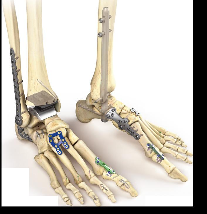 Other joint replacement Robotic-arm assisted technology The Mako platform brings value to joint replacement surgery through procedural advancements and an enhanced patient experience focused on