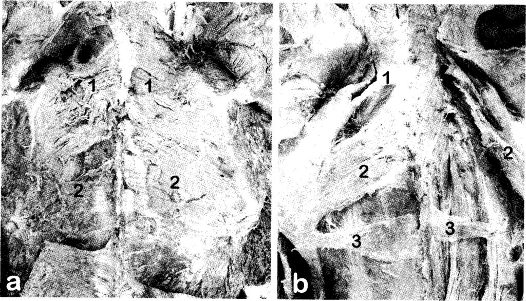 Fig. 1. Photographs o f the findings described in Case 1(a) and Case 2(b). M uscles - 1, rhom boideus minor; 2, rhom boideus major; 3, rhom boideus tertius.